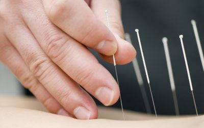 Scientific & Physiological effects of Acupuncture